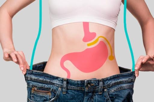 cirugia bariátrica, obesidad, sobrepeso